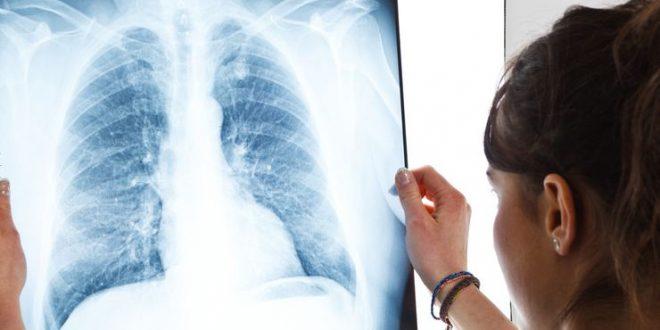 Akciğer Hastalıkları Belirtileri Nelerdir