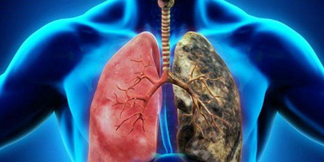 Akciğer Kanseri Hakkında Bilmeniz Gerekenler